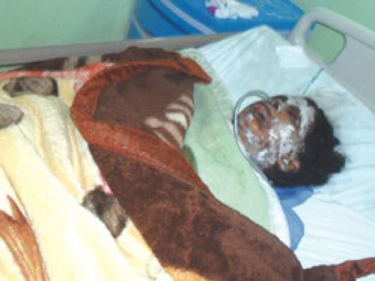 """Photo of أحرقت نفسها بالبنزين: وفاة رضيعة جزائرية """"احتضنت"""" أمها المنتحرة"""