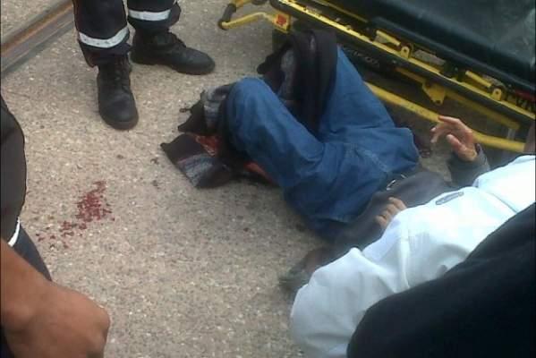 "Photo of مواطن يفقد رجليه في حادث اصطدام دراجته النارية بـ""الترامواي"" بلحسي الحسني بالدار البيضاء"