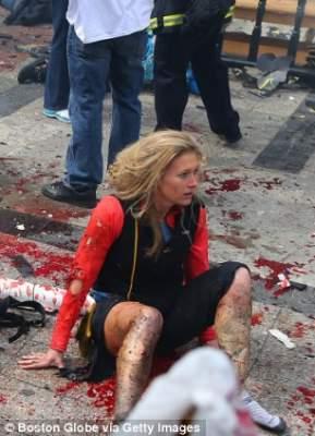 Photo of صور صادمة لضحايا انفجاري بوسطن وارتفاع عدد القتلى والجرحى