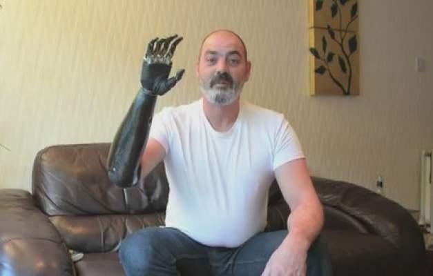 Photo of بالفيديو: يد إلكترونية بتكلفة 40 ألف دولار