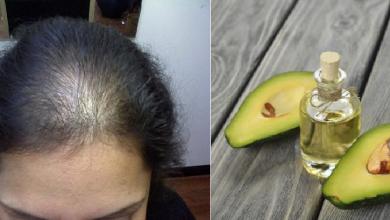 Photo of وصفة طبيعية لإنبات فراغات الشعر ومقدمة الرأس والنتيجة مبهرة.