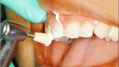 Photo of 4 خطوات و طرق طبيعية لإزالة جير الأسنان في ثوان فقط