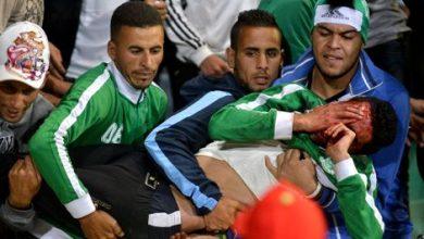 Photo of قميص الرجاء سبب الليلة الدامية: خسائر بشرية ومادية وإصابات واعتقالات