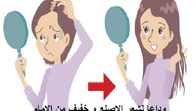 Photo of وداعا لشعر الاصلع و خفيف من الامام