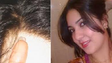Photo of وصفة لإنبات الشعر من الجدر بالتجربة