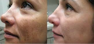 Photo of وصفات لعلاج الكلف من الوجه نهائيا