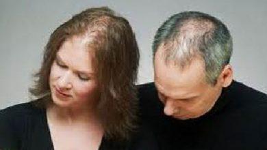 Photo of وصفة لحد تساقط الشعر بشكل نهائي وزيادة حجمه من مكون القليلات يعرفنه فقط