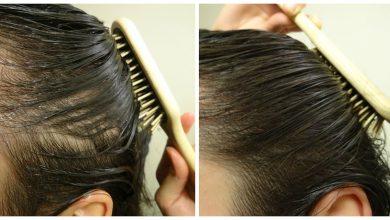 Photo of وأخيرا تخلصت من تساقط الشعر بفضل هذه الوصفة الطبيعية السهلة