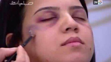 """Photo of """"دوزيم"""" تمتص غضب مكافحة العنف النساء وتعاقب مشرفي """"صباحيات"""""""