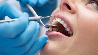 طبيب أسنان واحد لكل 7000 نسمة في المغرب