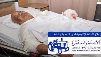 Photo of بلاغ لحزب الأصالة والمعاصرة عقب اضرام برلماني النار في جسده