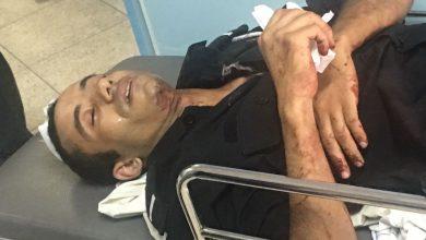 Photo of الحسيمة: إصابة 72 عنصرا من القوات العمومية إثر استفزازها ومهاجمتها بالحجارة من طرف بعض العناصر الملثمة