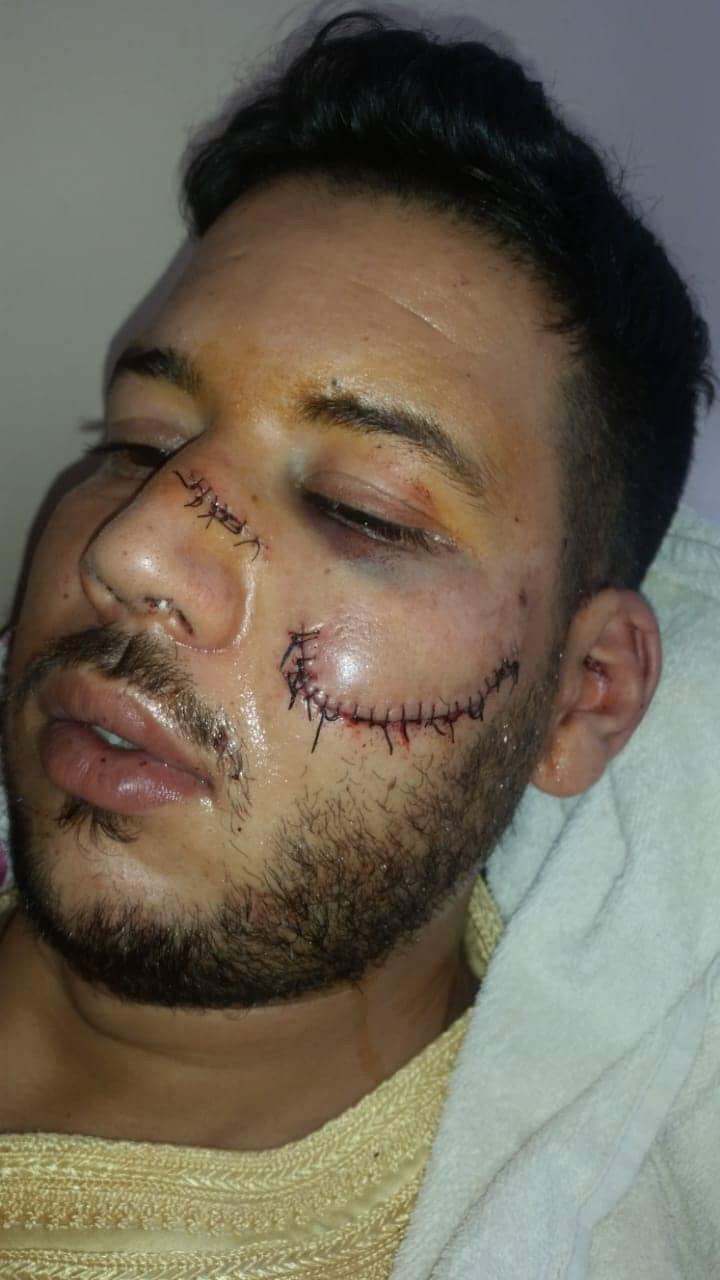 اعتداء شنيع على شاب بمدينة سطات والضحية يطالب بالإنصاف