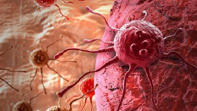 Photo of باحثون بريطانيون يتوصلون إلى تشخيص السرطان عبر التنفس
