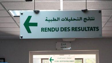Photo of صورة بيانية: حصيلة الحالة الوبائية بالمغرب إلى حدود عصر اليوم الأربعاء