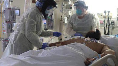 Photo of اكتشاف أعراض جديدة لدى جزء من المصابين بكورونا غير مرتبطة بالجهاز التنفسي