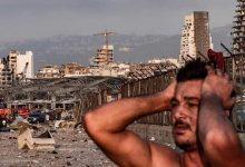 Photo of إصابة زوجة فنان لبناني خلال انفجار بيروت (صور)
