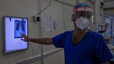 Photo of علماء يحددون سبب إصابة شخص أكثر من مرة بعدوى الفيروس التاجي!