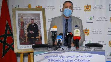 Photo of النقاط الرئيسية في تصريح رئيس قسم الأمراض السارية بمديرية الأوبئة