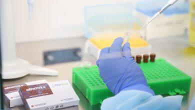 Photo of باحثون: تشخيص التهاب الكبد الوبائي C..أول اختبار مغربي 100 % سيحمي جزء كبيرا من الساكنة