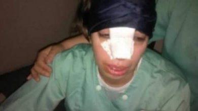 Photo of شخص يكسّر أنف مولّدة تباطأت في تقديم المساعدة لزوجته الحامل بفاس