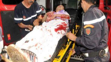 Photo of بالصور من طريق مديونة بالبيضاء : الصيني ضحية رصاص أعدائه من بني جلدته نجا بأعجوبة