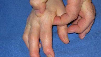 Photo of Polyarthrite rhumatoïde :l'invalidité des malades réduite de moitié en 20 ans