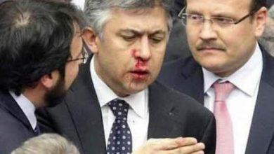 Photo of بالصور: دماء ولكمات بين نواب العدالة والتنمية والمعارضة داخل البرلمان