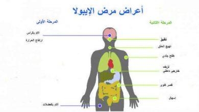"Photo of أعراض فيروس ""ايبولا"" و إرشادات للوقاية منه"