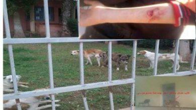 Photo of الفقيه بن صالح : الكلاب الضالة تهاجم المواطنين وتتخذ من مقر جماعة حدبوموسى ملجأ لها