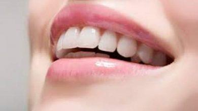 Photo of تخلصي من إصفرار الأسنان ورائحة الفم الكريهة