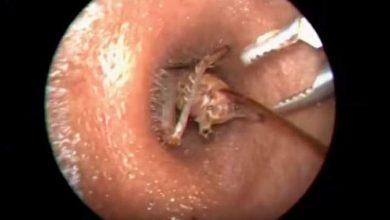 Photo of فيديو عملية إستخراج صرصور من أذن شخص